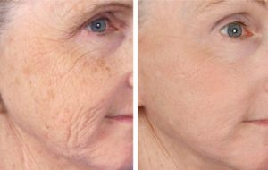 micro needling Derma Pen 3 Results remove age spots