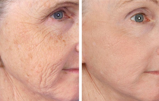 micro needling Derma Pen 3 Results remove age spots