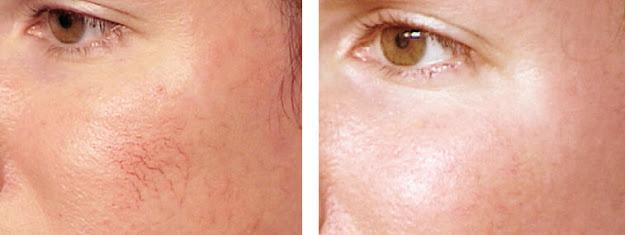 micro needling Derma Pen 3 scar removal