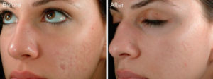 microneedling acne scar removal